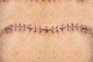 Stitches on belly